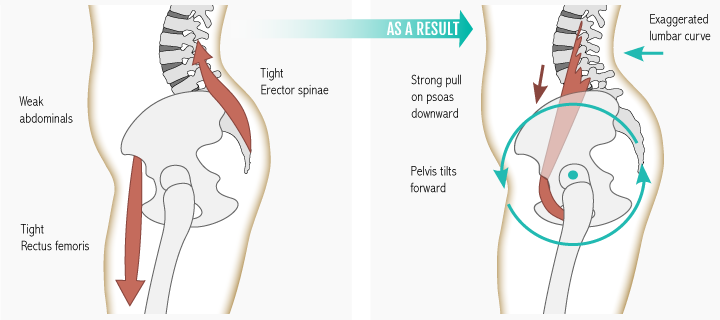 psoas muscle stretch
